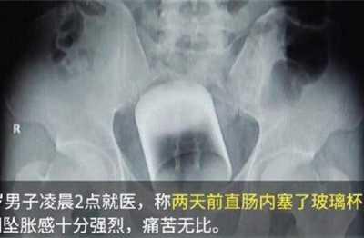 医生称还有让你意想不到的自慰器 男人放进女入肛门里动态卧